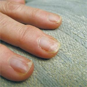 acrylic nail damage to natural nails photo - 2