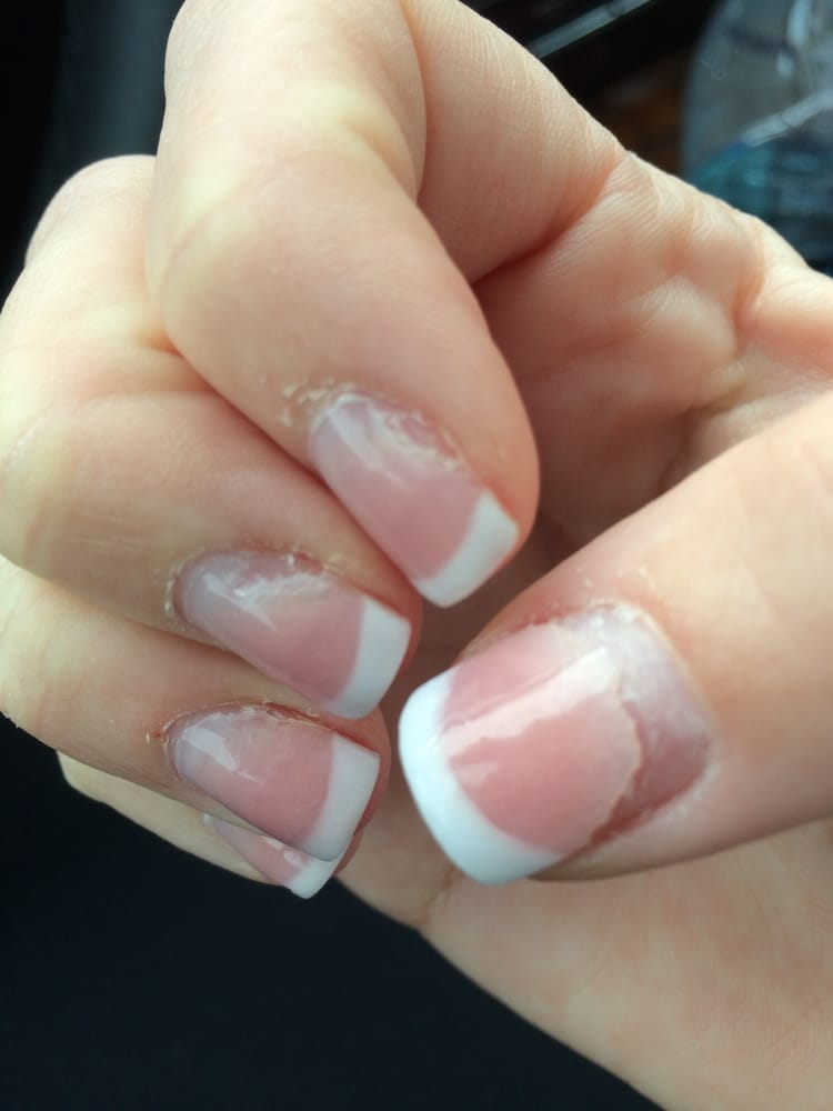 Acrylic nails after taken off - New Expression Nails