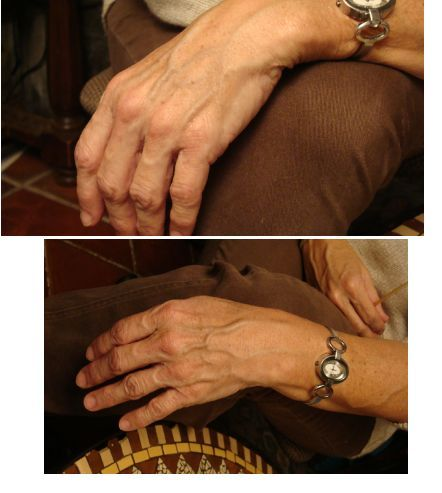 acrylic nails and ehlers danlos photo - 1