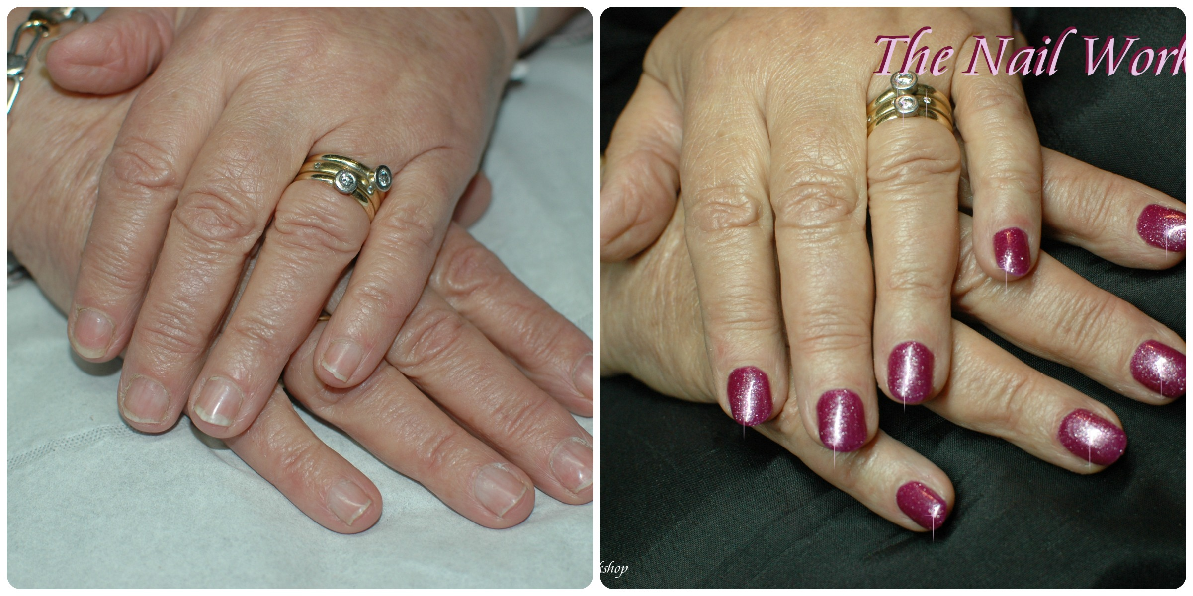 acrylic nails before and after photo - 1
