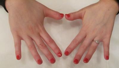 acrylic nails croydon photo - 2