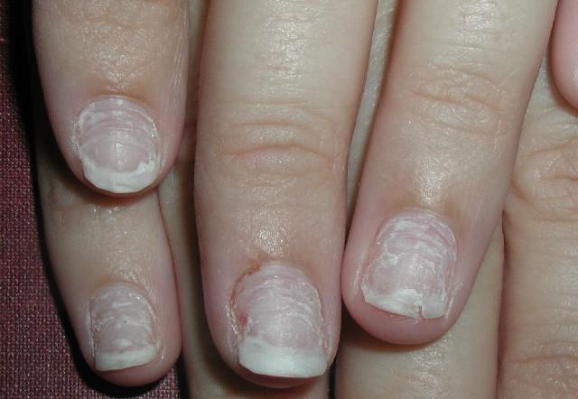 acrylic nails damage photo - 1