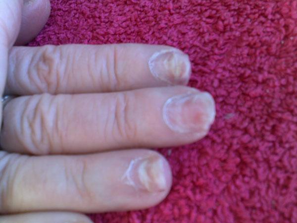 acrylic nails damage photo - 2