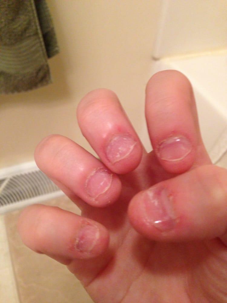 acrylic nails erie pa photo - 1