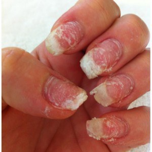 acrylic nails is it bad for you photo - 1