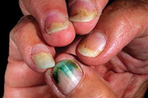 acrylic nails mold photo - 1