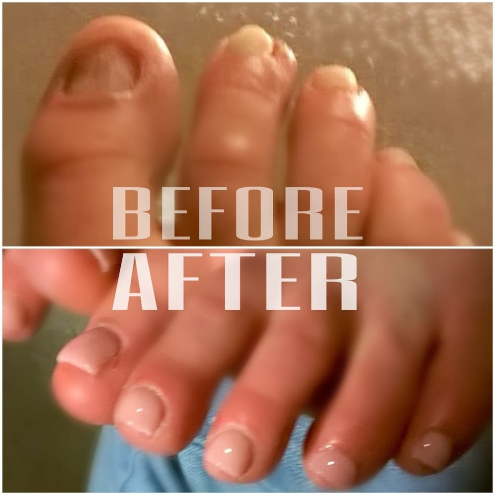 acrylic nails on toes without nails photo - 2