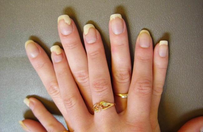 acrylic nails pain photo - 2