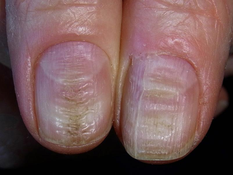 acrylic nails ridges photo - 1