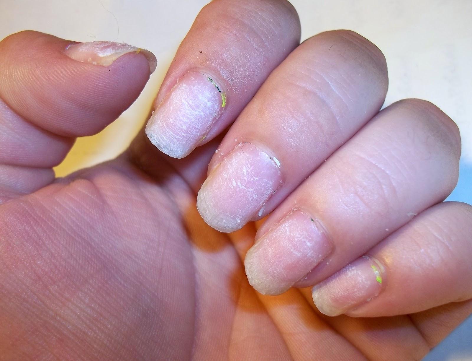 acrylic nails taken off photo - 1