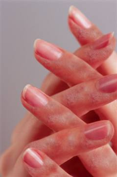 Allergic reaction to acrylic nails - Expression Nails