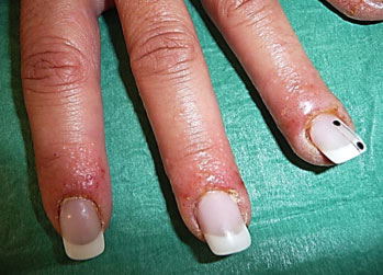 allergic reaction to gel nails symptoms photo - 1