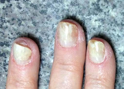 allergic reaction to gel nails symptoms photo - 2
