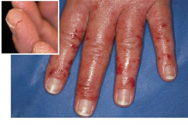 allergic to acrylic nails photo - 1