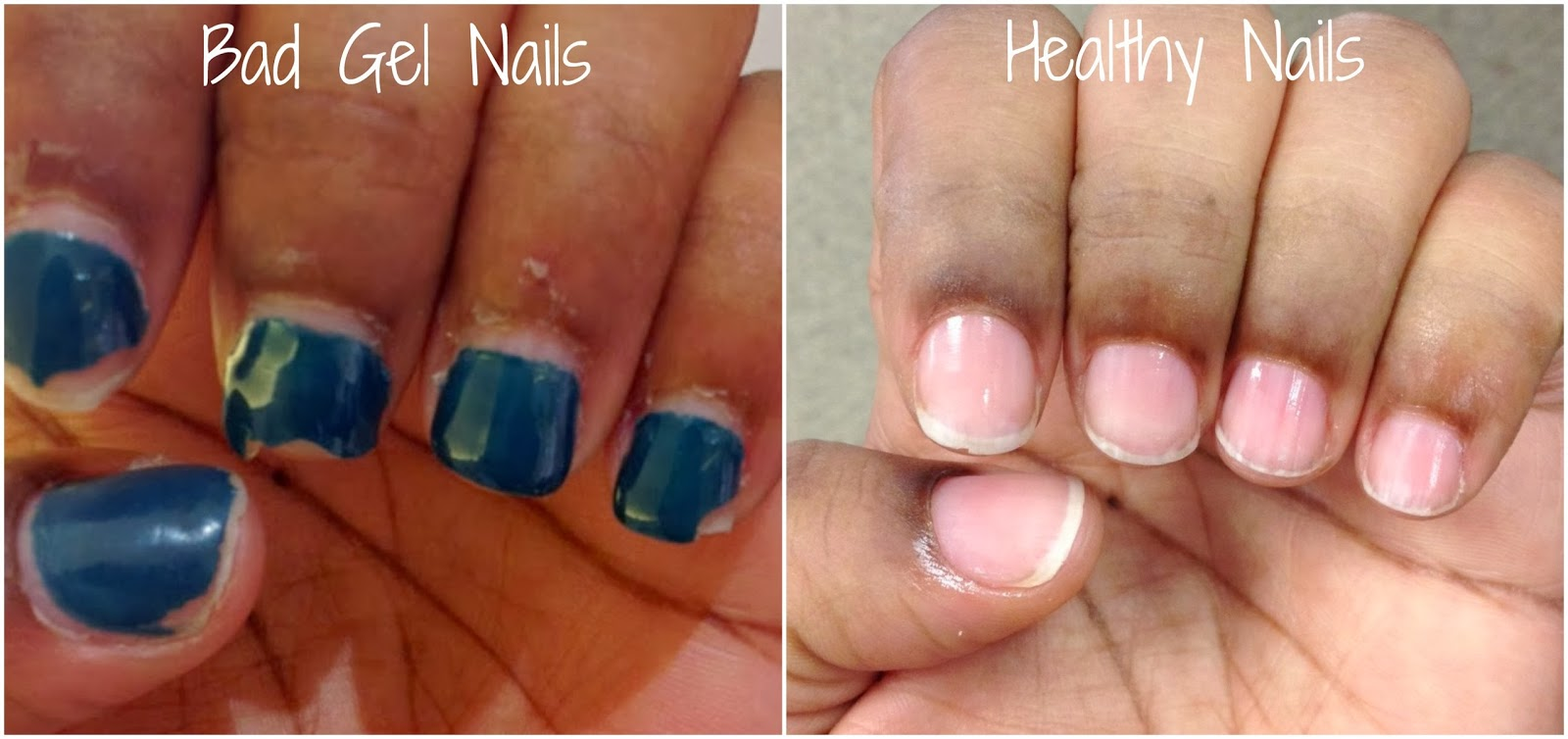 at home gel nails issues photo - 2