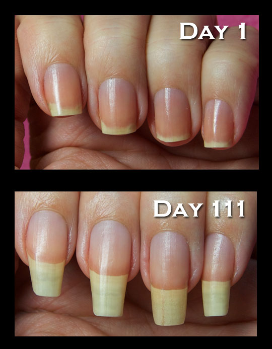 Best Nail Strengthener After Gel Nails Photo
