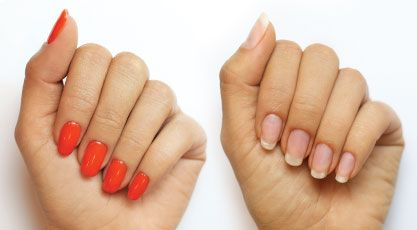 can acrylic nails be removed with nail polish remover photo - 1