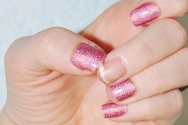 can acrylic nails cause onycholysis photo - 1