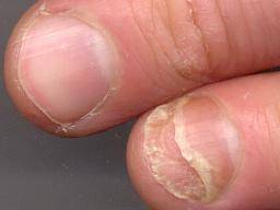 can acrylic nails cause onycholysis photo - 2