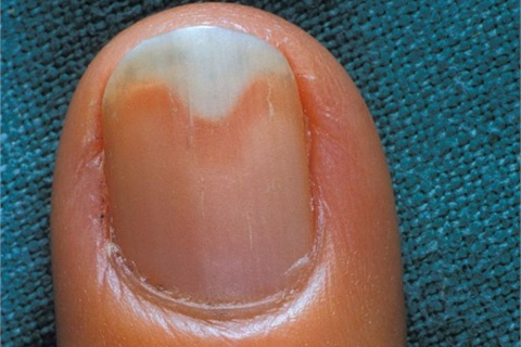 can gel nails cause onycholysis photo - 1