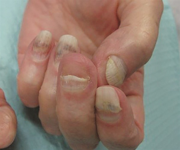 can gel nails cause onycholysis photo - 2