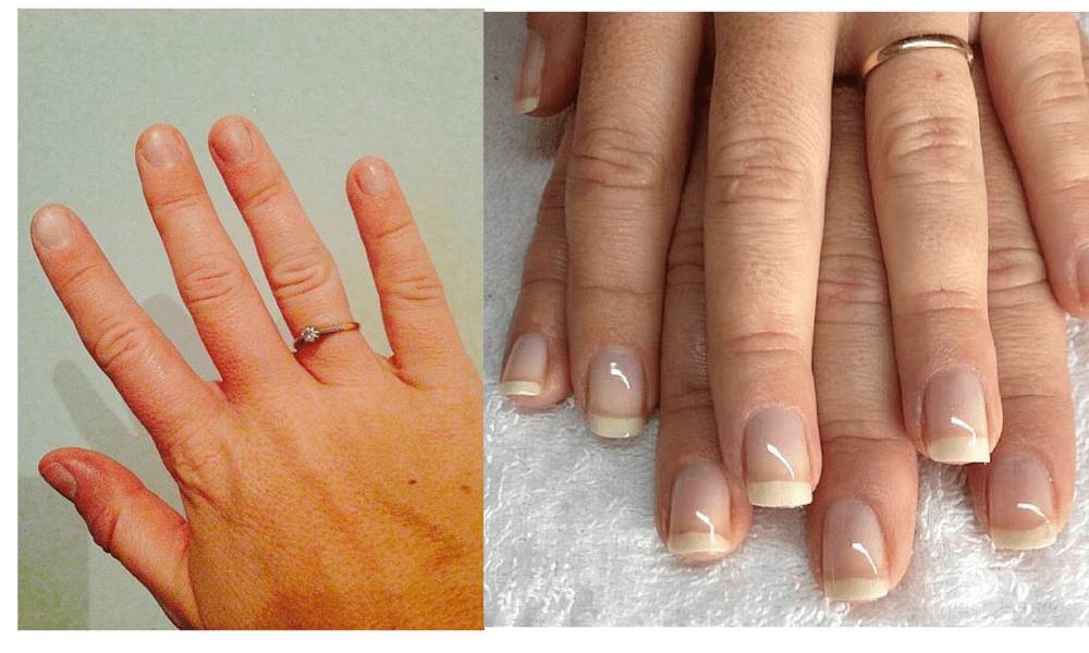 can you get acrylic nails after removing photo - 1