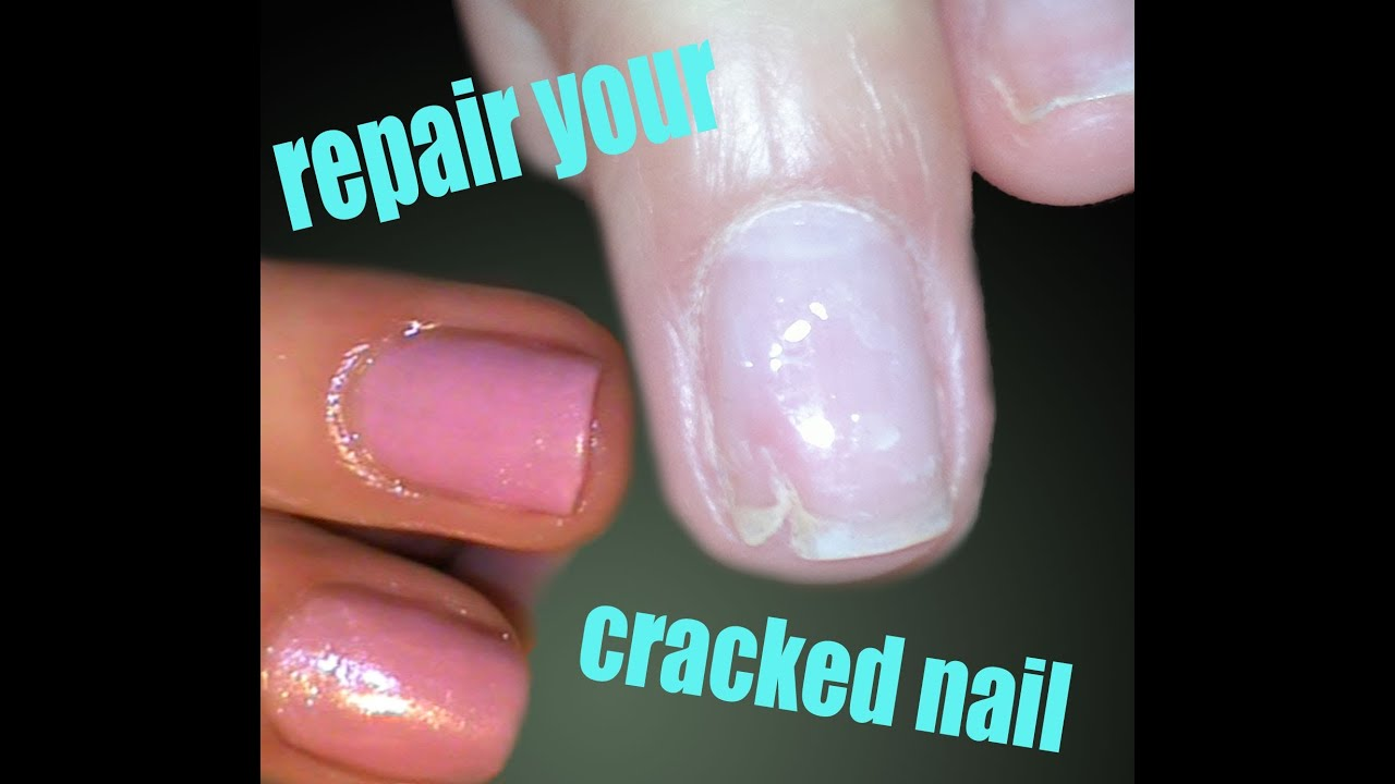 can you get gel nails if your nail is chipped photo - 2