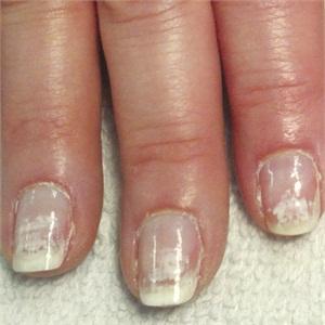 can you take gel polish off acrylic nails photo - 2