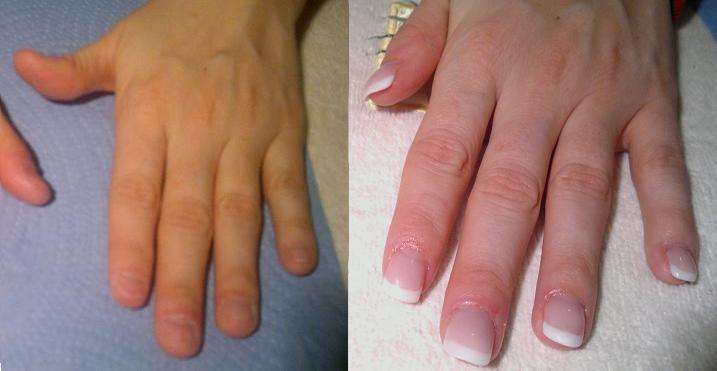 cheap gel nails zurich photo - 2