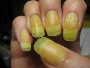 chemical burn from acrylic nails photo - 1