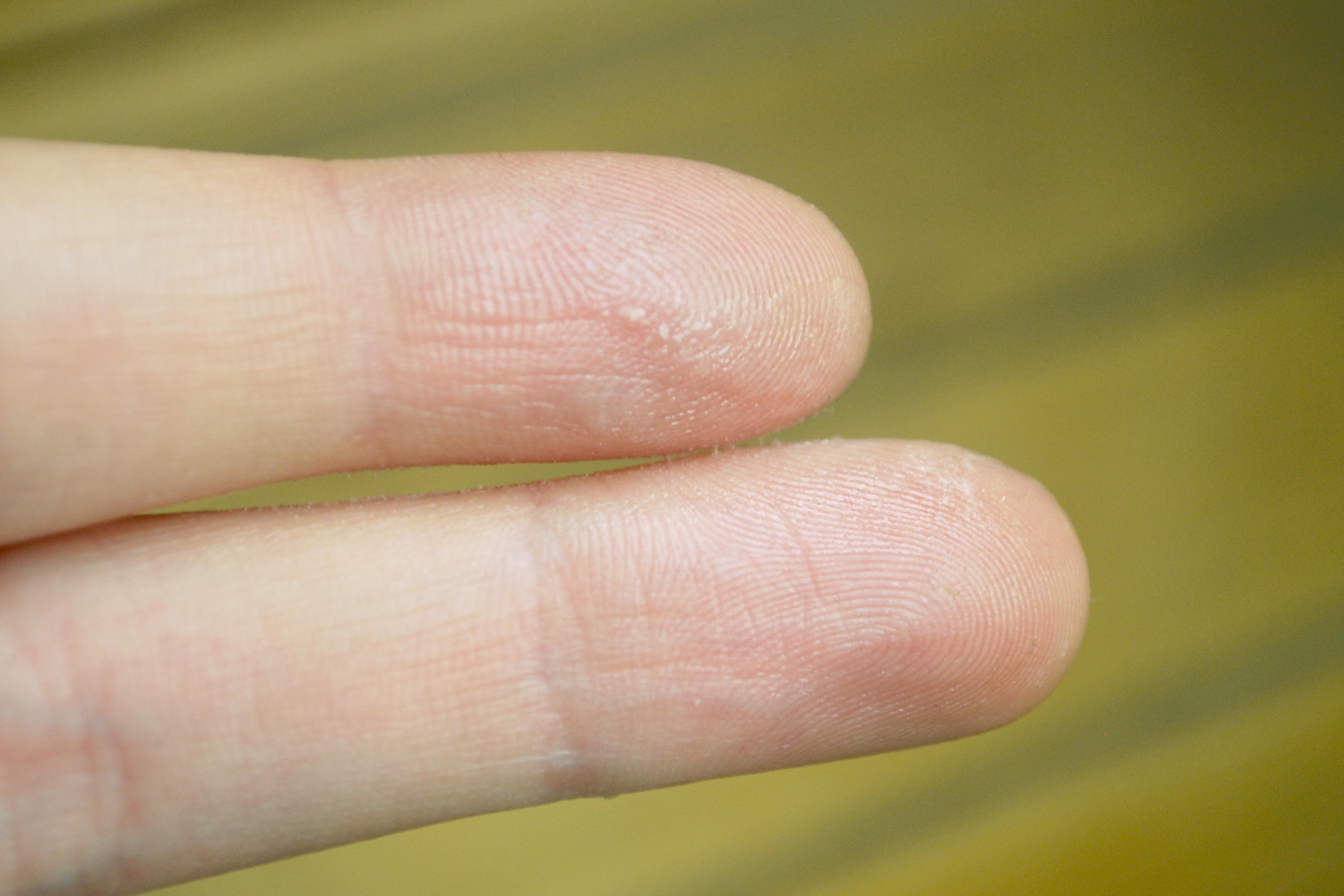 contact dermatitis from acrylic nails photo - 2