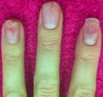 Damaged nail bed from acrylic nails - Expression Nails