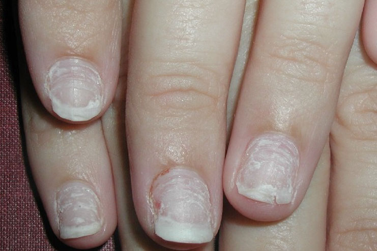 damaged nail bed from acrylic nails photo - 2