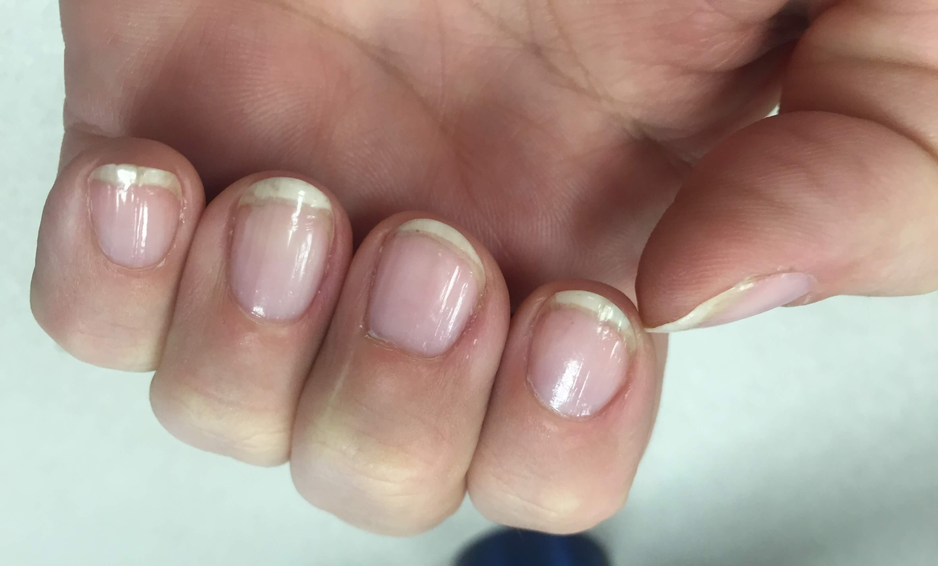 Do gel nails damage your nails - Expression Nails