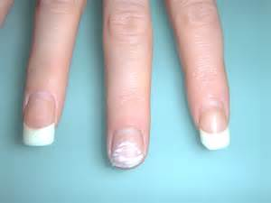 do tanning beds harm gel nails photo - 1