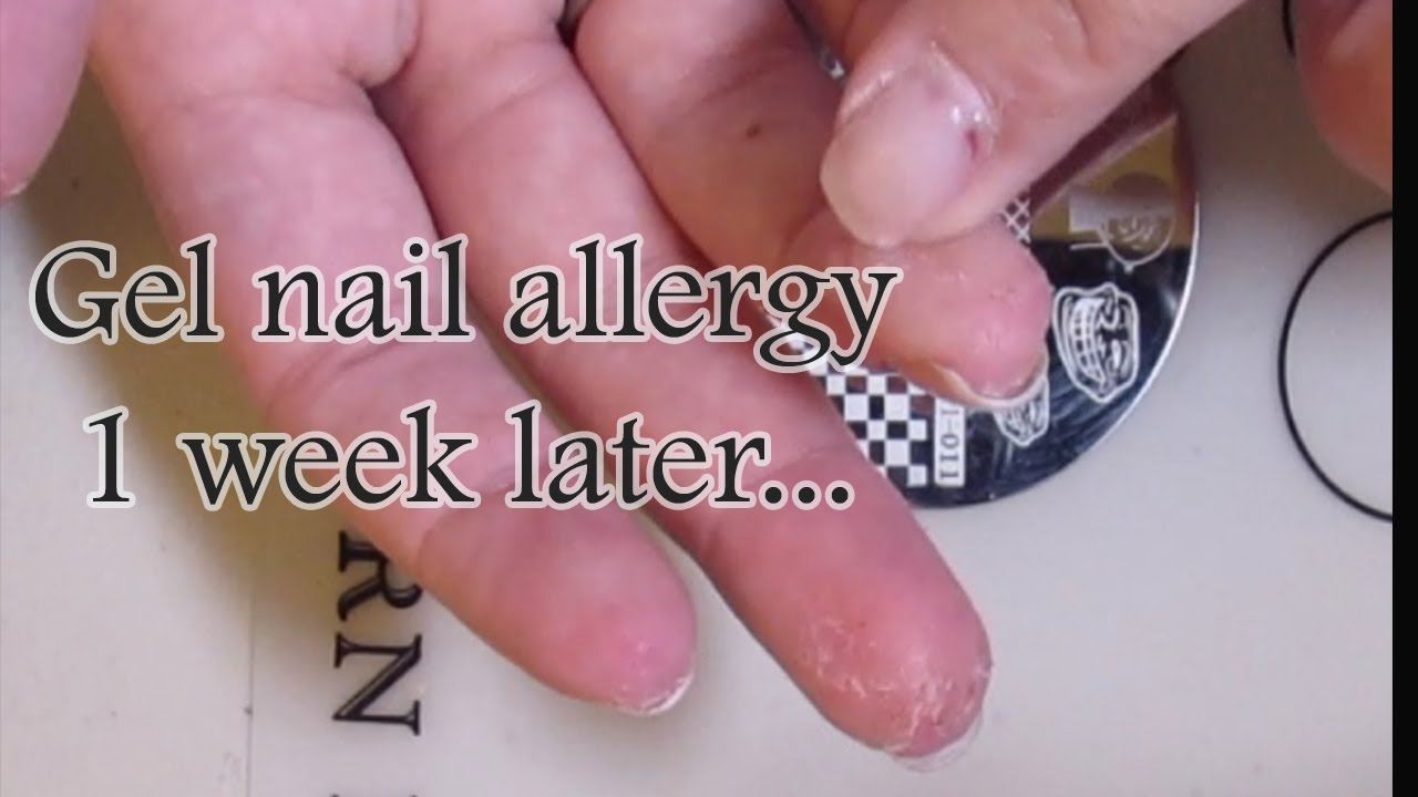 gel nail polish allergic reaction photo - 2