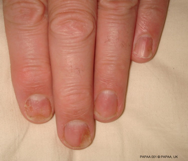 gel nails and psoriasis photo - 1