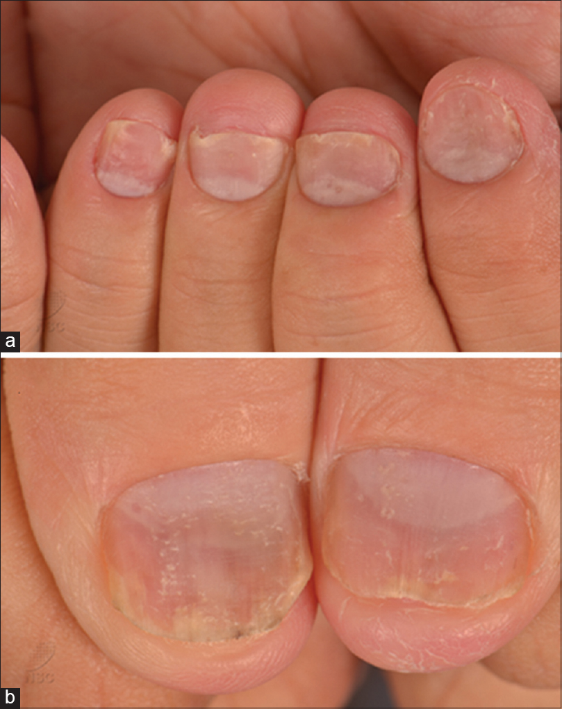 gel nails and psoriasis photo - 2