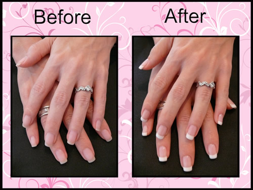 gel nails before and after photo - 1