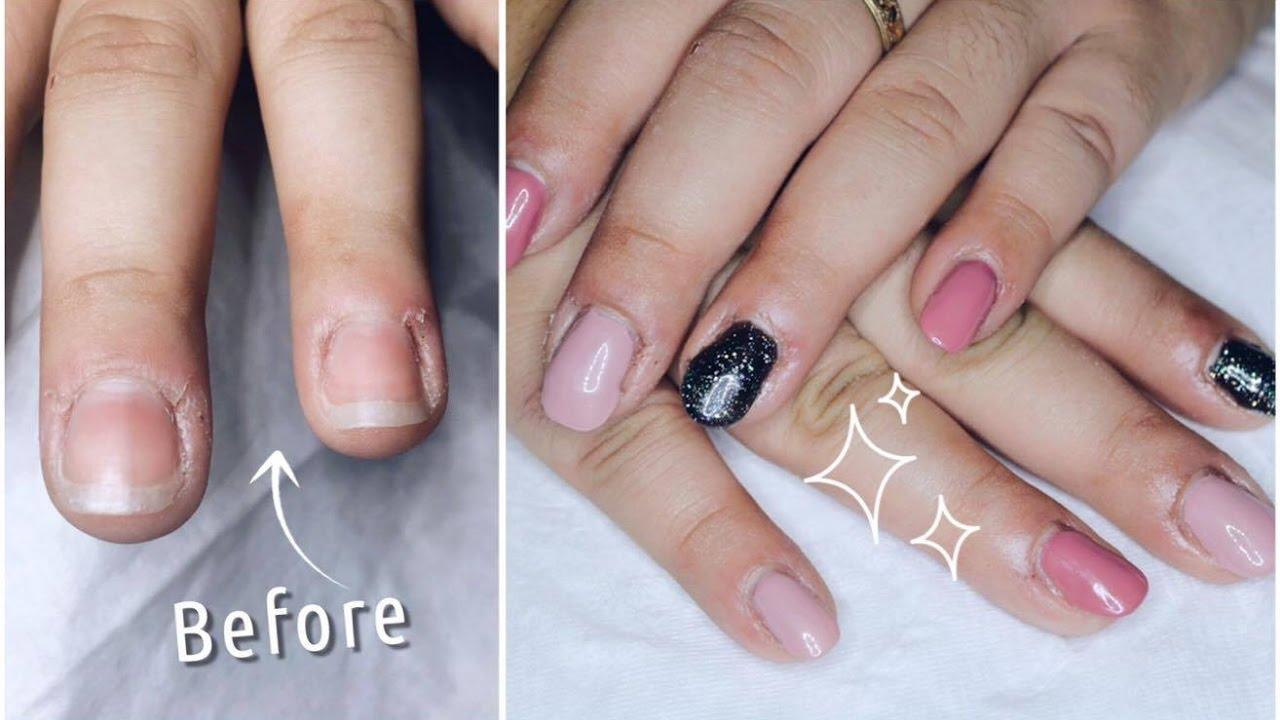gel nails on really short nails photo - 2