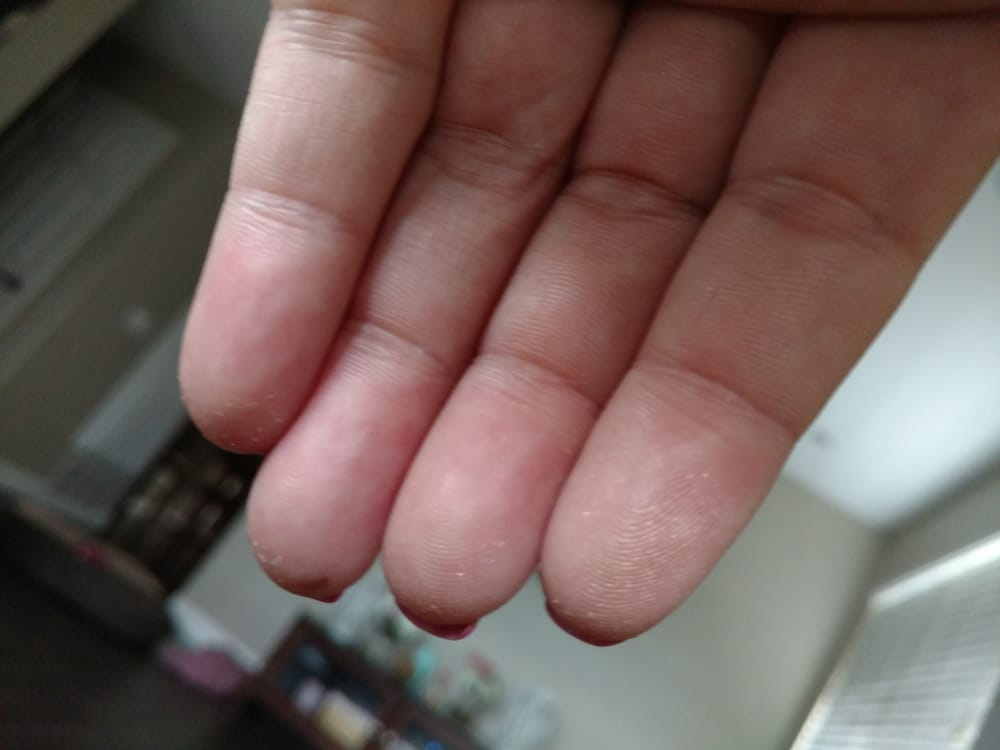gel nails peeling after 3 days photo - 2
