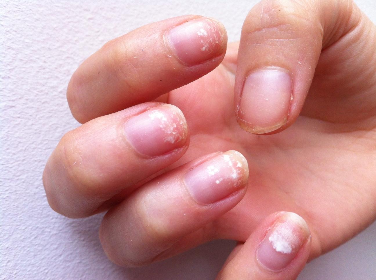 gel nails ruin nails photo - 2