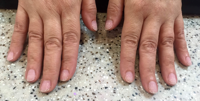 gel nails uv damage photo - 2