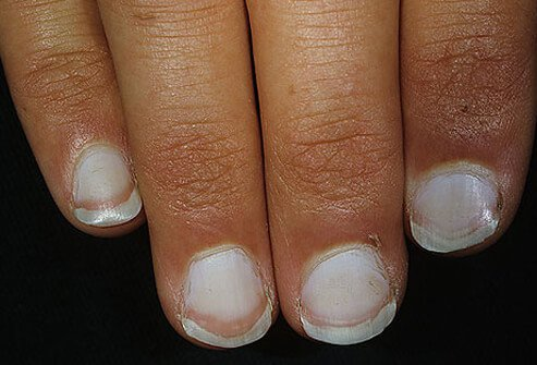 help my white gel nails are turning brown! photo - 2