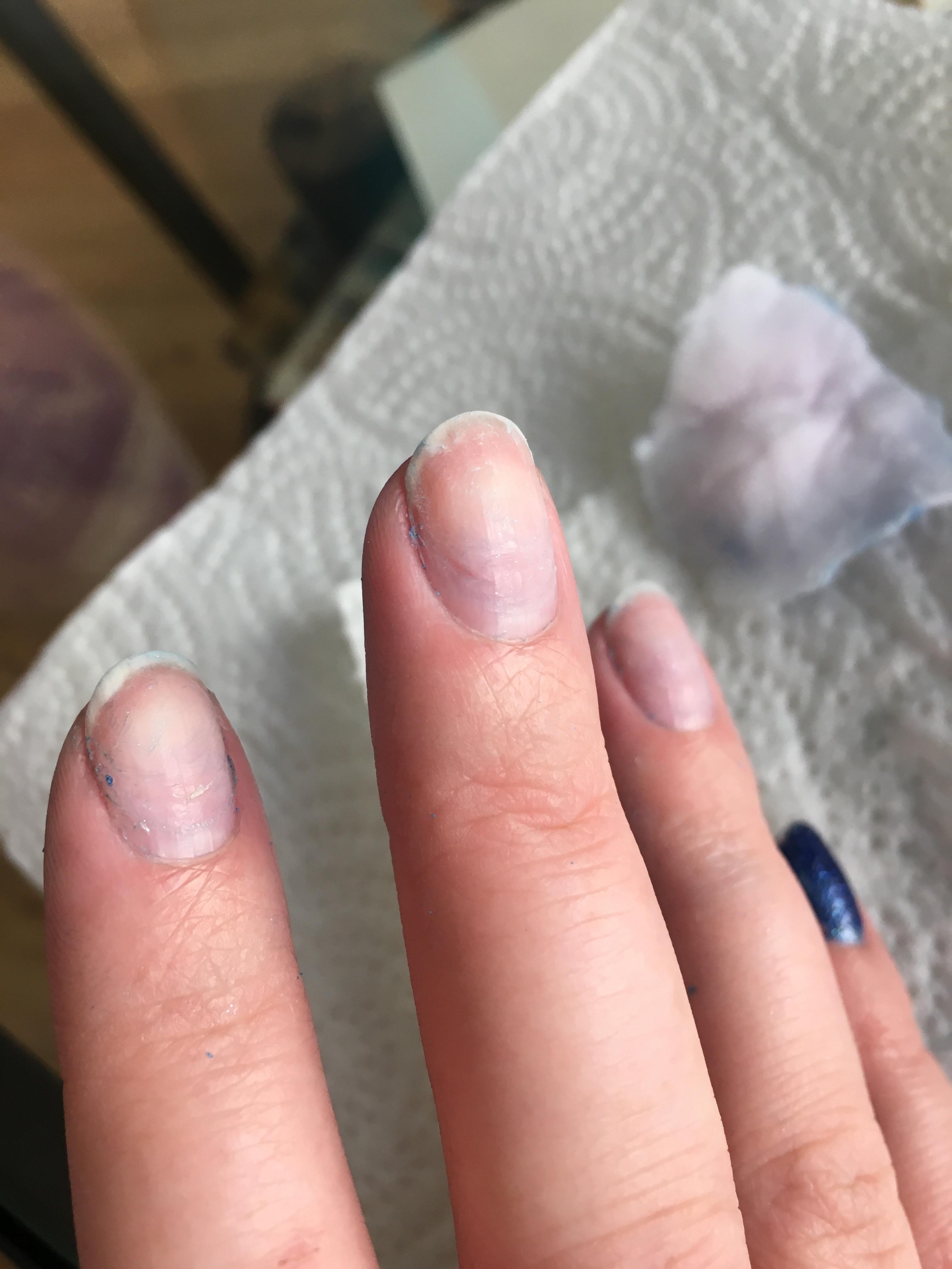 history of acrylic nails photo - 1