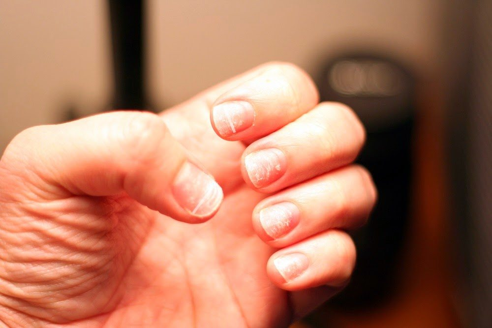 how acrylic nails are removed photo - 2