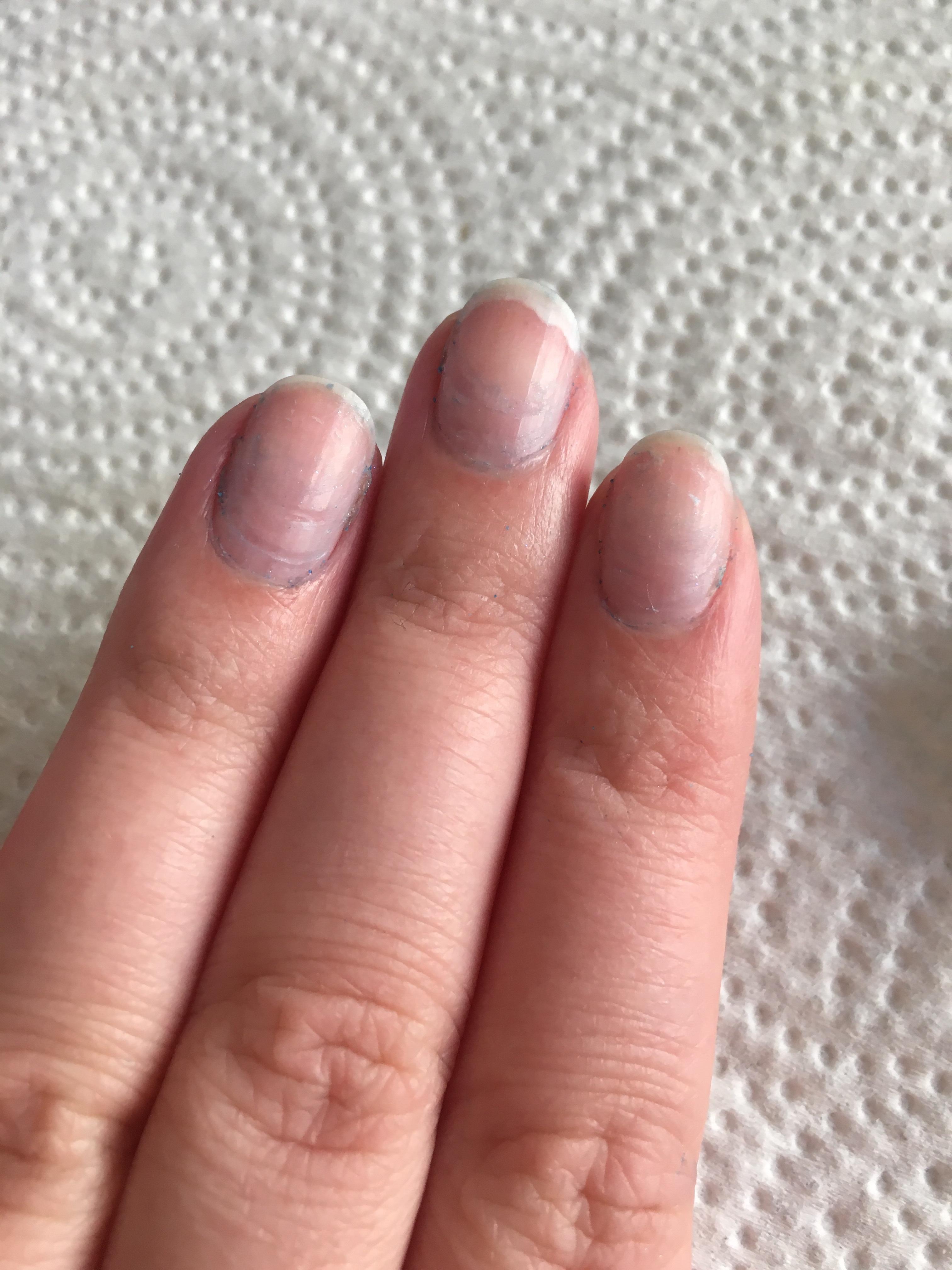 how do i get acrylic nails off photo - 2