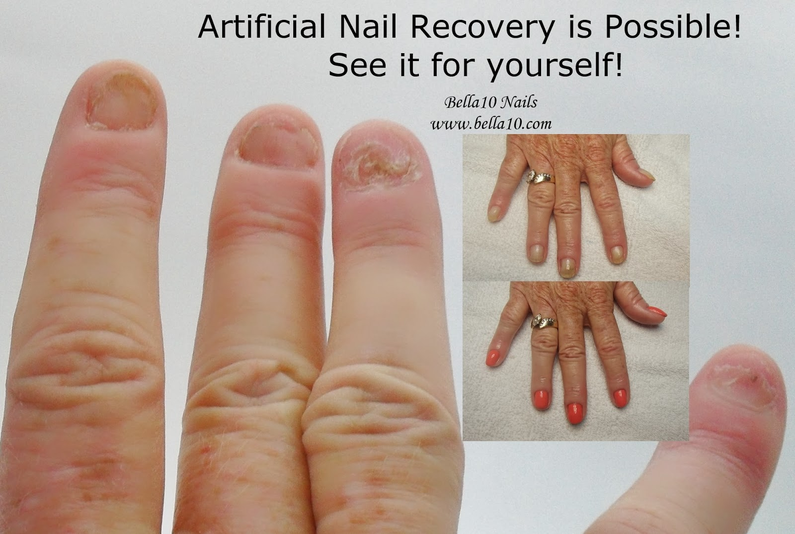how long can you leave on acrylic nails without damaging your real nails photo - 2