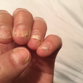 how much does it cost to get acrylic nails off photo - 2