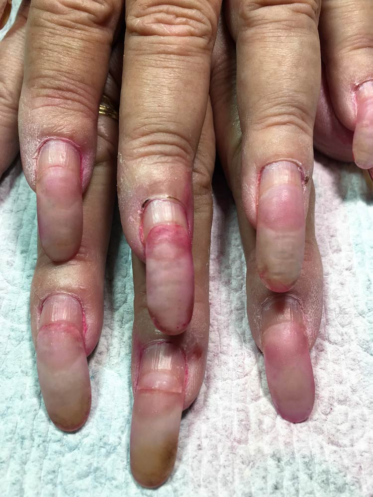 how to get gel nails to not lift photo - 1